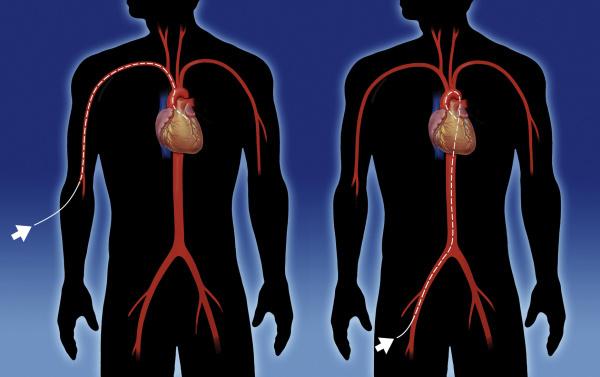 Herzerfrischend Fotolia_36609217_M-e1417779645245 Herzkatheteruntersuchung - Das Unsichtbare sichtbar machen Diagnose und Therapie  Rechtsherzkatheter Linksherzkatheter Koronarangiographie Herzkatheteruntersuchung Herzkatheterlabor Herzkatheter Einschwemmkatheter