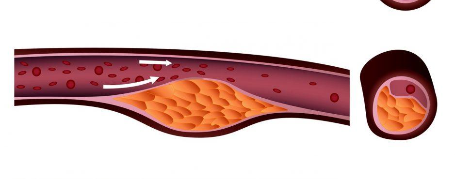 Herzerfrischend Fotolia_37780751_M-938x370 Bypassoperation: Wenn die Gefäße eng werden Diagnose und Therapie  Operation minimal-invasiv Herzmuskel Herzinfarkt Bypass