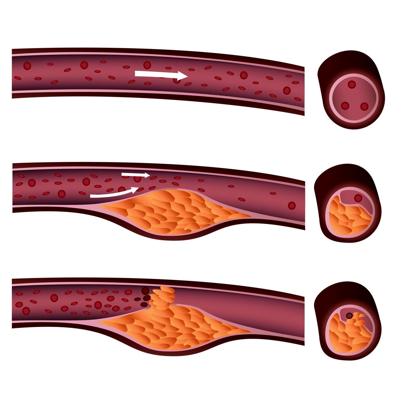 Herzerfrischend Fotolia_37780751_M Bypassoperation: Wenn die Gefäße eng werden Diagnose und Therapie  Operation minimal-invasiv Herzmuskel Herzinfarkt Bypass