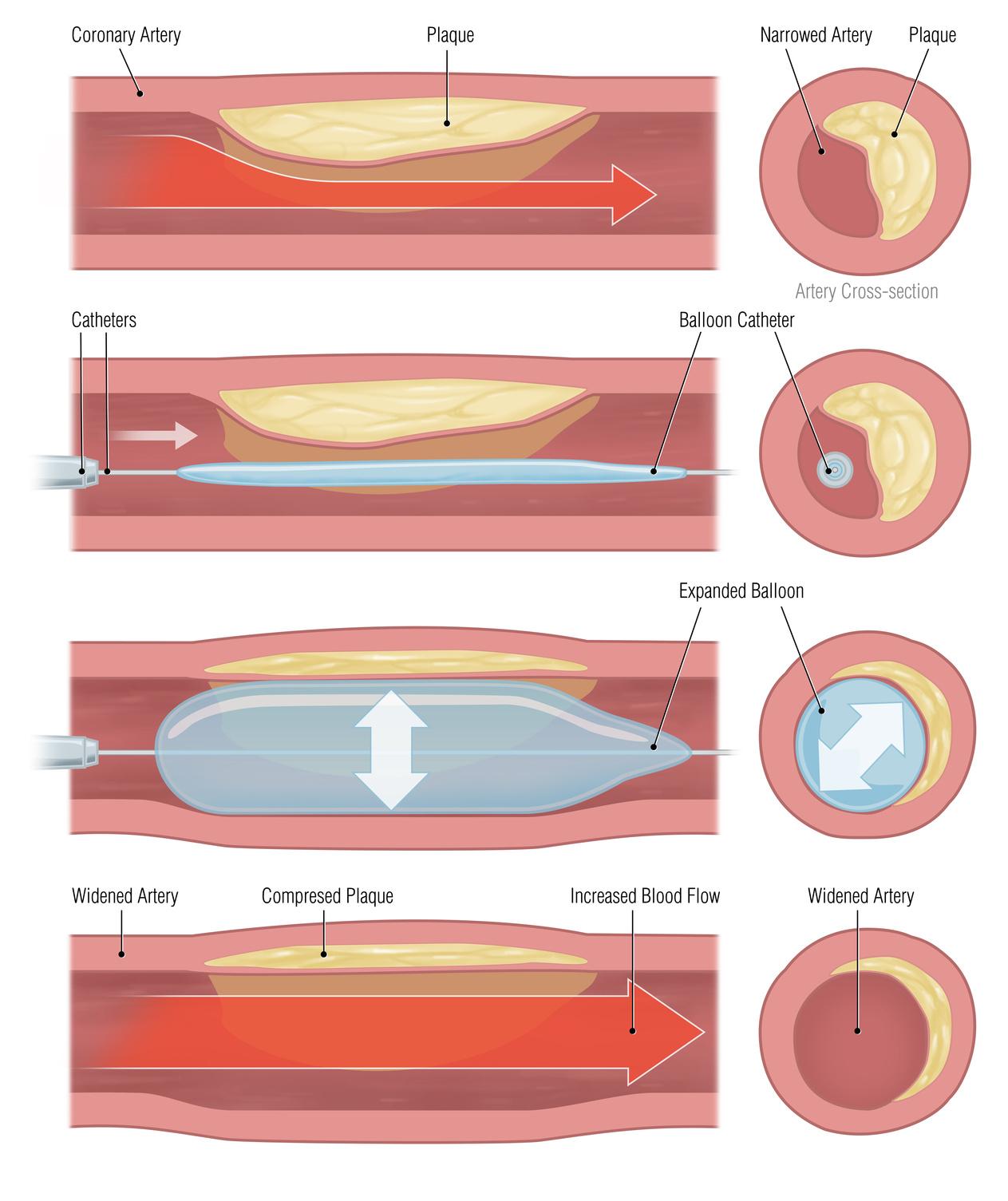 Herzerfrischend Fotolia_43511956_M Ballondilatation und Stentimplantation Diagnose und Therapie  Stentimplantation Stent PTCA Herzinfarkt Ballonkatheter Ballondilatation