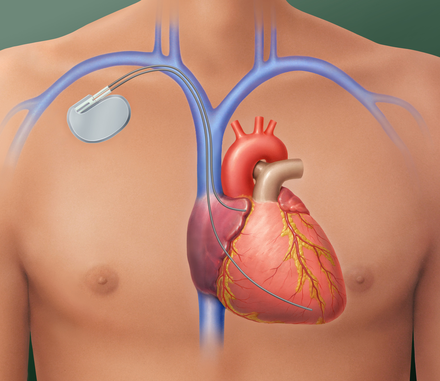 gesamtes abdomen mit organen