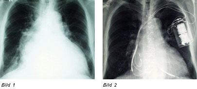 Herzerfrischend abcd Wenn das Herz schwach wird Diagnose und Therapie  Herzschwäche Herzinsuffizienz Defibrillator CRT